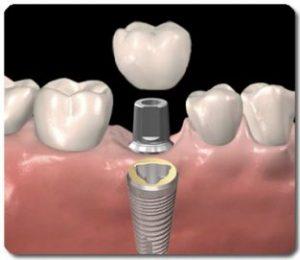 enkel_tands_implantaat slide