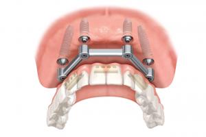 implantaat_gebit_implantaatslide